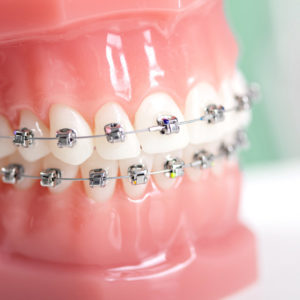 dentale-ortodontia