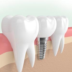 implante-dentale